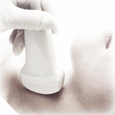 Ultrasound guided fine needle aspiration